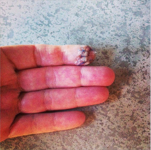 Annika Sorenstam's stitched-up left index finger after a kitchen accident. The stitches will come out in a week.